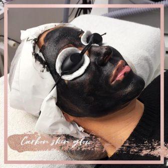 carbon-skin-glow-hollywood-jennest-palencia-laser